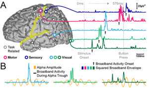 eeg-brain-function